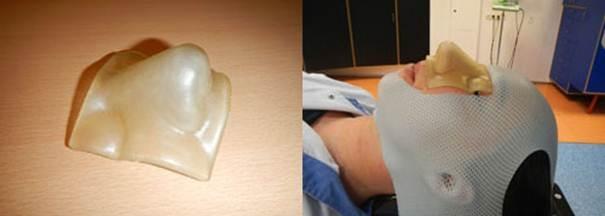 3D printers zorgen voor effectieve bestraling