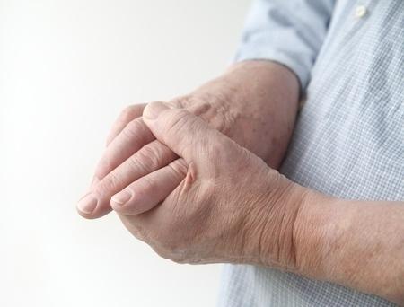 Ook huisarts kan ziekte van Dupuytren behandelen