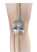 Stijve knie na knieprothese