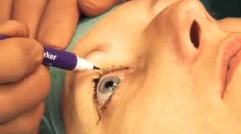 Hoe gaat een ooglidcorrectie in zijn werk?